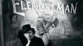 'El hombre elefante' (David Lynch, 1980)
